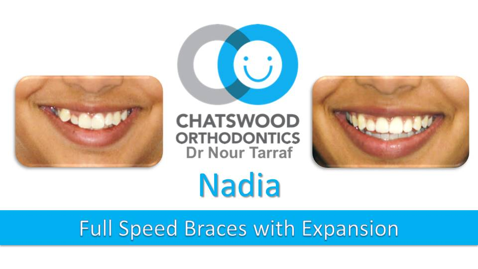 Nadia Full Speed Braces - Orthodontics Expansion