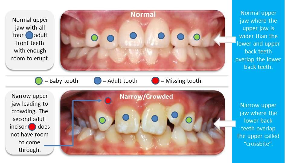Nadia Full Speed Braces - Orthodontics Expansion