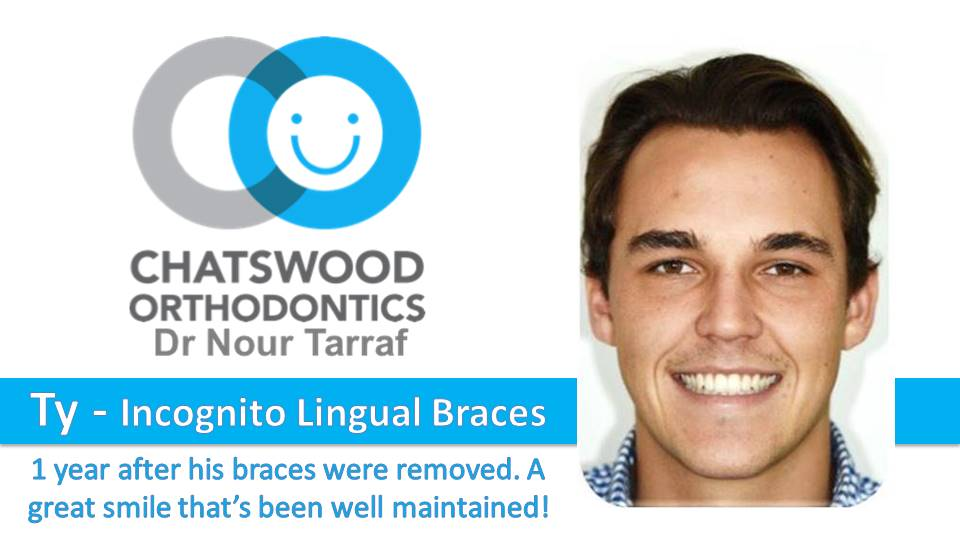 TY incognito lingual braces in Sydney