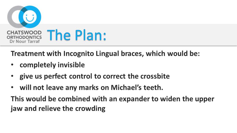Incognito braces - Sydney Michael C