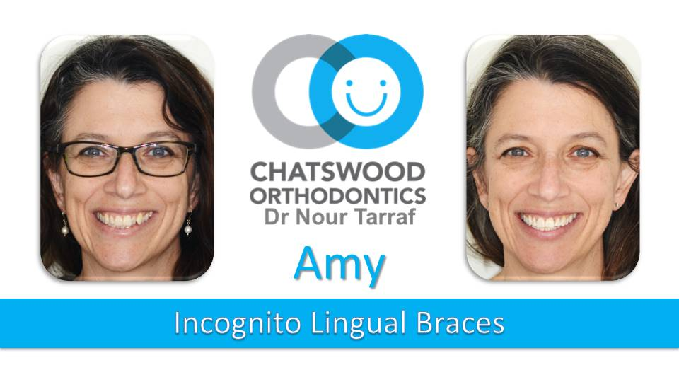 Amy Incognito lingual braces Sydney