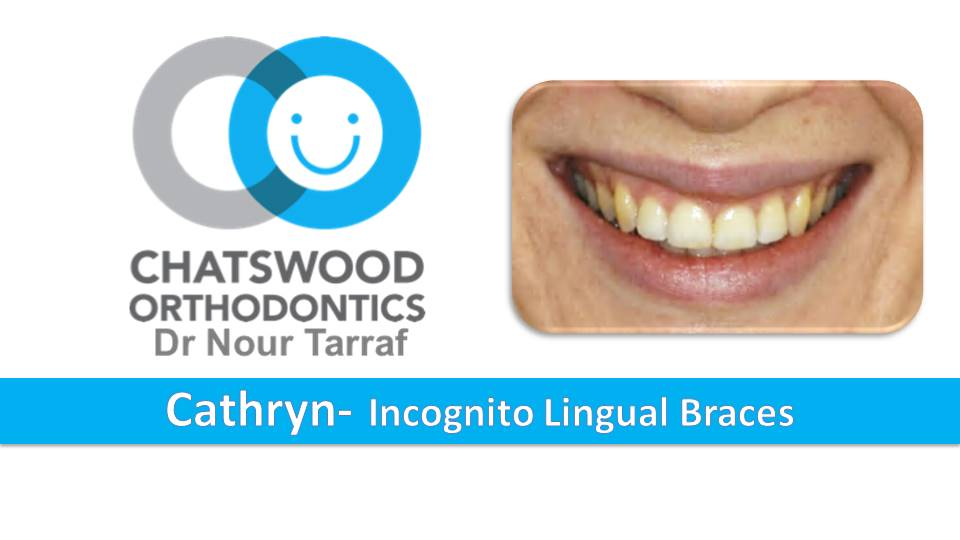 Cathryn - Sydney Incognito Lingual braces