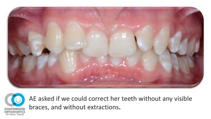 Incognito lingual braces