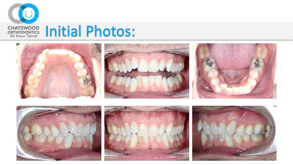 Incognito Braces & Accelerated Orthodontics